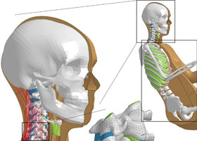A virtual model of the human, developed in the the Vinnova financed project VIVA